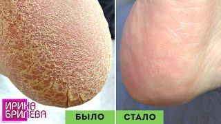 Педикюр 🌸 Обработка трещин дисками 🌸 Гиперкератоз 🌸 Ирина Брилёва