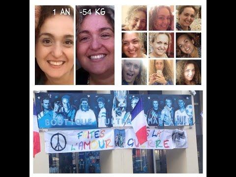 #52 [Sleeve]  Bilan 1 an post Op Sleeve Hôpital Saint Joseph Marseille