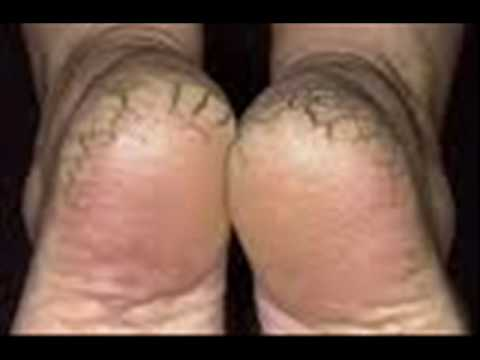 dry cracked heels after pregnancy