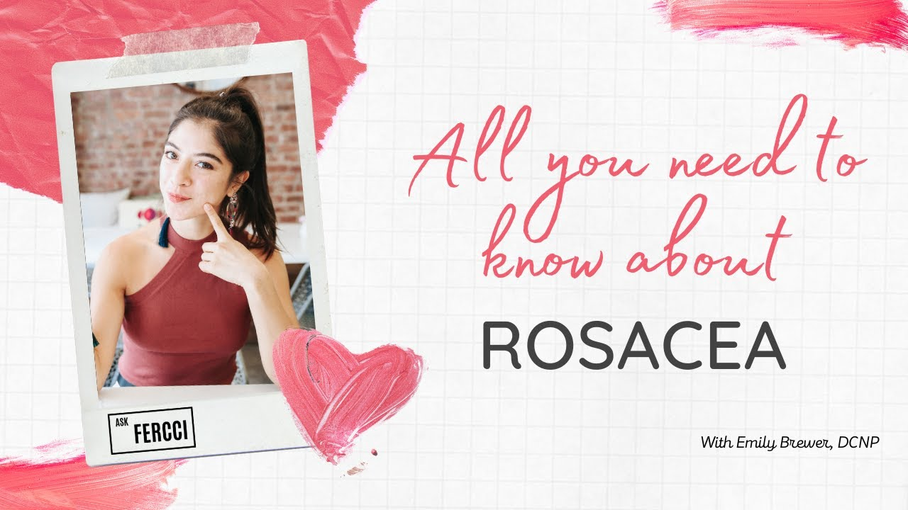 How to know if you have rosacea?