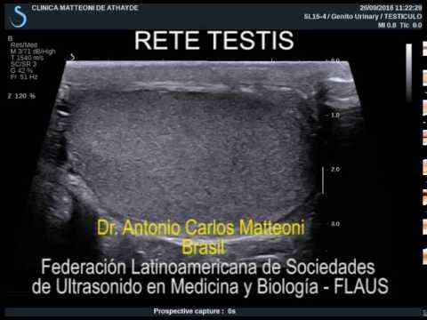 RETE TESTIS - YouTube