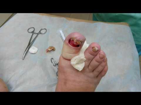 Удаление ногтя при онихогрифозе
