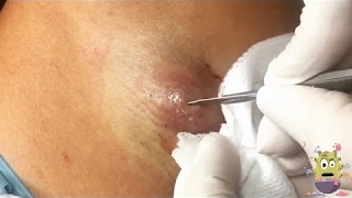 Remove Giant Abscess Cyst Armpit
