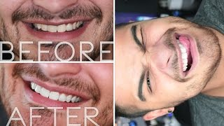 How I Whitened My Teeth! | Alex Faction