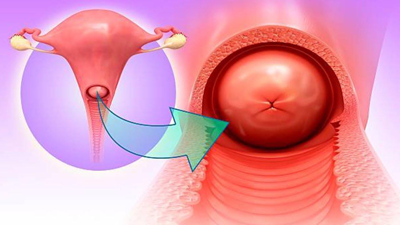 La Cervicitis Crnica Es Cncer - Youtube-1472