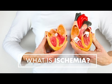 What Is Ischemia? | Dr. John Osborne | Top10MD