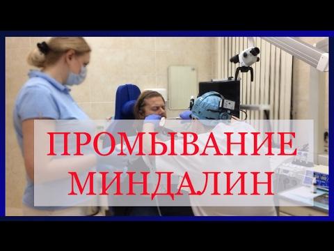 Вакуумное промывание миндалин. Хронический тонзиллит. Аденоиды.