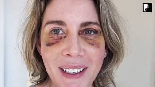 Blepharoplasty Video Diary - Day 6 After Surgery (5 of 15)