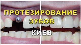 Протезирование зубов Киев - стоматология Люми-Дент(, 2017-08-22T06:58:12.000Z)