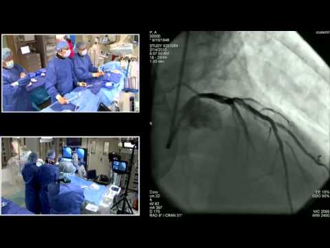SIF 2013 Live Case - Functional PCI Case