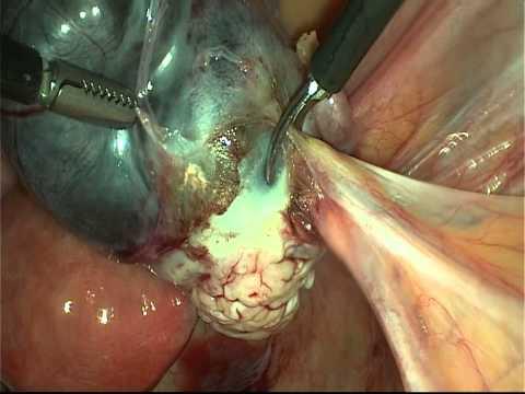 Спайки в малом тазу. Лечение спаечного процесса в гинекологии