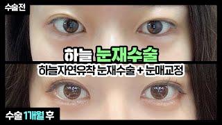 [부산쌍수재수술] 매몰로 풀린 눈! 하늘자연유착 쌍수재…