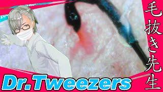 354 [200x Zoom] Red hole Dr. tweezers 毛抜き先生の角栓や毛根