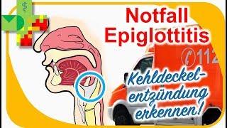 Epiglottitis - Kehldeckelentzündung erkennen und richtig reagieren!