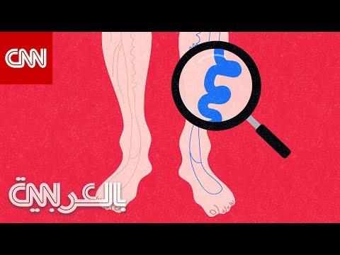 الدوالي.. ما سبب تكوينها وكيف يمكن الوقاية منها؟  - نشر قبل 6 ساعة