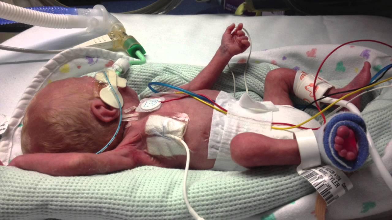 neonatal nurse practitioner video - youtube, Cephalic Vein