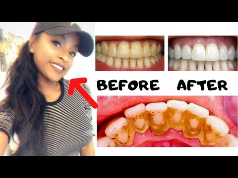 DIY REMOVE PLAQUE & TARTAR FROM TEETH AT HOME IN 2 MINUTES (100% WORKS) | GET WHITEST TEETH EVER
