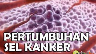 Pertumbuhan Sel Kanker Pada Tubuh