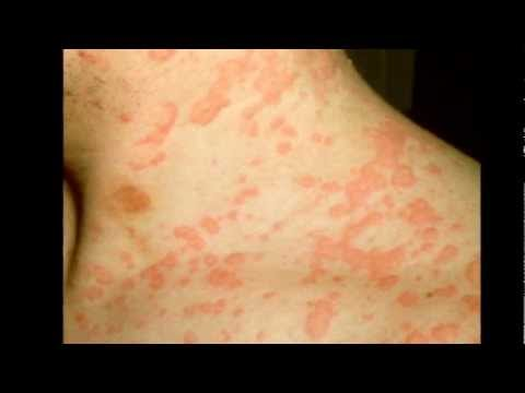 Natural Home Remedies For Urticaria – Hives Treatment