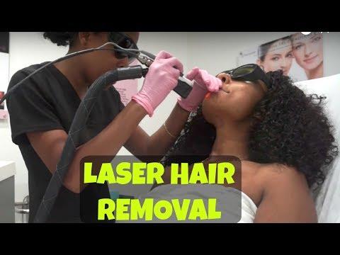 Laser Hair Removal Face, Underarms & Brazilian Treatment on dark skin