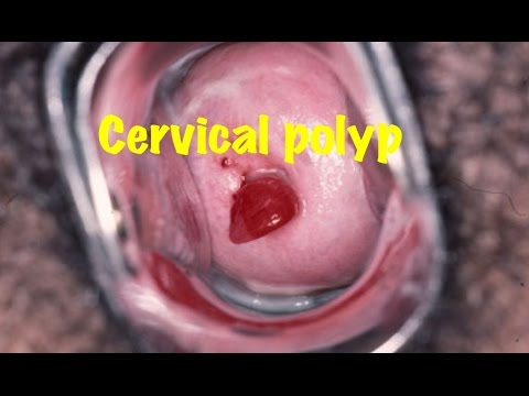 medical video lecture: cervical polyp, obgyn - youtube, Skeleton