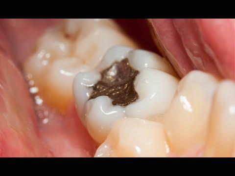 Amalgam Dental Filling