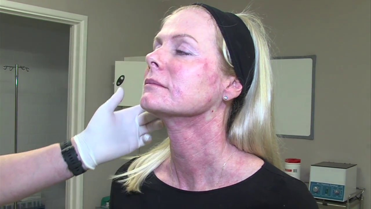 Skin Tightening Without Surgery - Profhilo - Dr Ian