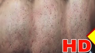 Cystic Acne - Pimples And Blackheads Extraction Treatment On Face !! (Part 12)