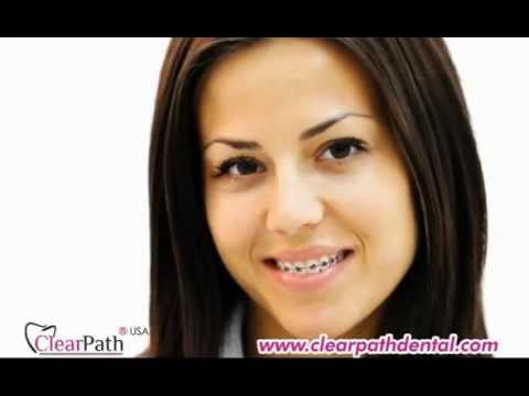 CLEARPATH ALIGNERS TV COMMERCIAL