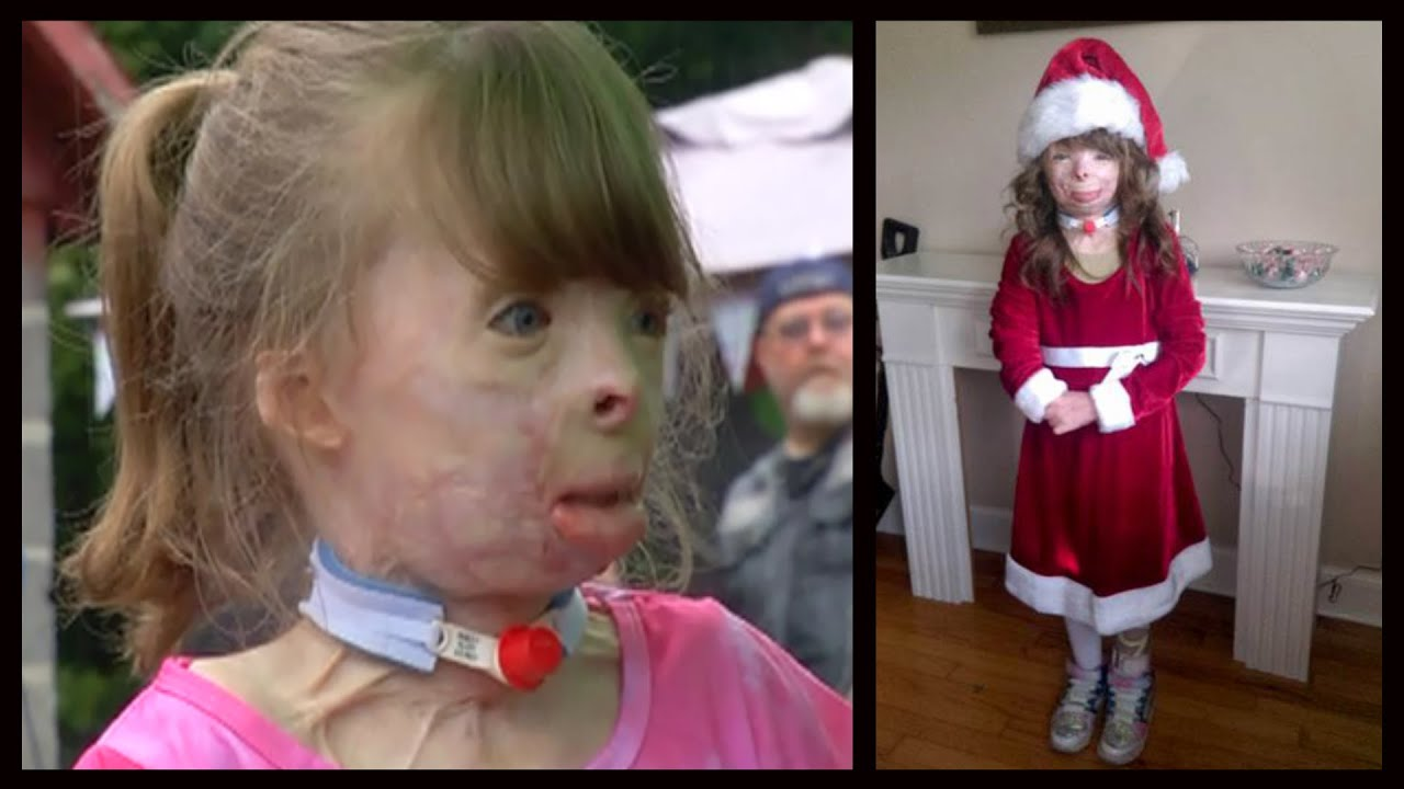 badly burned girl wants a christmas card from you meet safyre