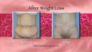 Should I Visit a Northern Virginia Plastic Surgeon after Weight Loss Surgery? Thumbnail