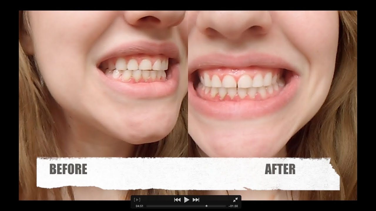Dr Song Teeth Whitening Review Before And After 1 Use