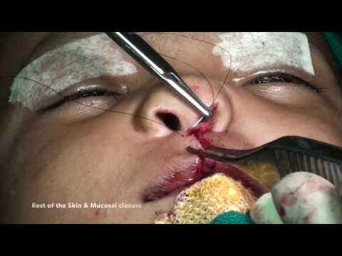 Primary Rhinoplasty in unilateral CL/P: 3-Key suture technique