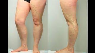 Nas quais úlceras são pernas para os tratamentos