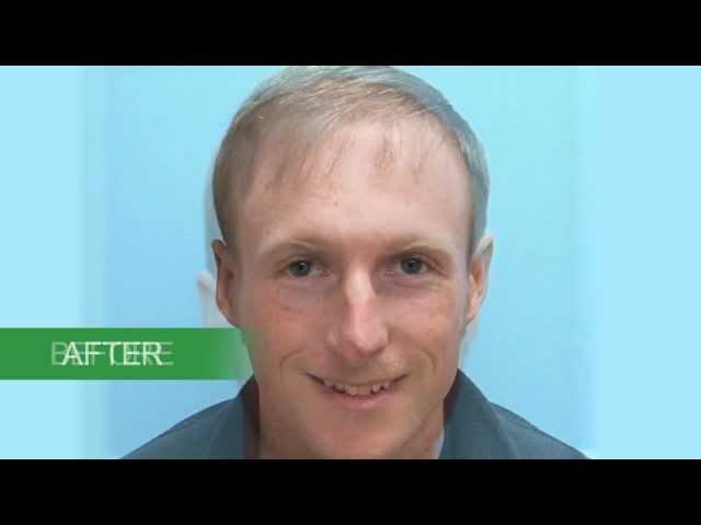 Hair Transplant Results | Michael Vories, M.D. | Carolina Hair Surgery | FUE