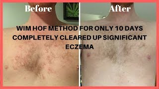 Wim Hof Method Before and After.  10 Days Later Extraordinary Results