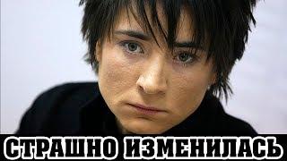 У ЗЕМФИРЫ рак на последней стадии: любимая россиянами артистка вся посинела и плохо выглядит