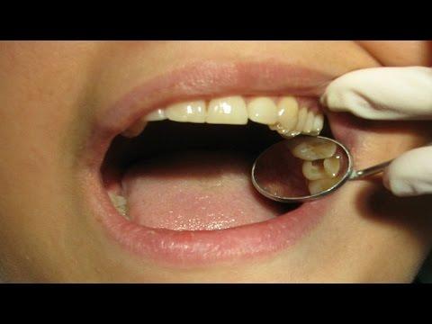 Dental care for Seniors - Dentures - Oral Health