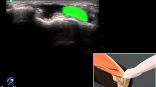 Démo 3D: échographie du nerf ulnaire au niveau du coude - Échographe SonoSite