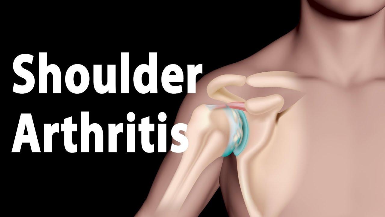 Shoulder Arthritis Narrated Animation.