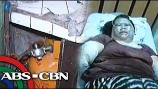 LPG tank explodes in Pasay; 2 hurt