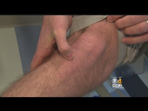 New Treatment Helps Young Arthritis Patients