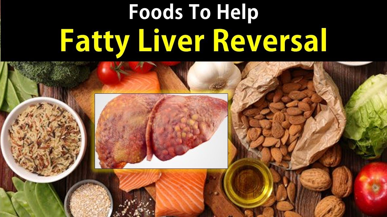 how long to diet to eliminate fatty liver