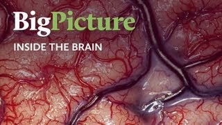 Inside the Brain | A Big Picture film for the Wellcome Trust