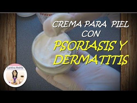 Las causas del surgimiento de la psoriasis y los síntomas