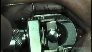 sandhya eye hospitals-Laser Eye Surgery - YouTube.flv