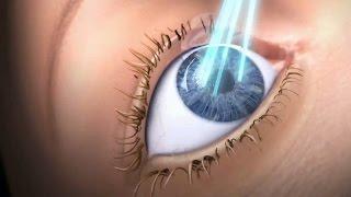 Augenlasern Lasik animierte Erklärvideo