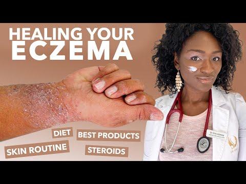 How To Treat ECZEMA-Atopic Dermatitis: Black Dark Skin, Dry Flaky Skincare Routine Hyperpigmentation
