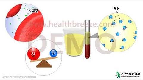 [시연용] l0017aako [대한당뇨병학회] 제8장, 당뇨병의 합병증 (1) 급성 합병증 : 고혈당 위기 상황