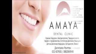 Усмивка на лизинг(Усмивка на лизинг AMAYA dental clinic предоставя на своите пациенти възможността да се възползват от една нова услу..., 2013-06-10T14:50:24.000Z)
